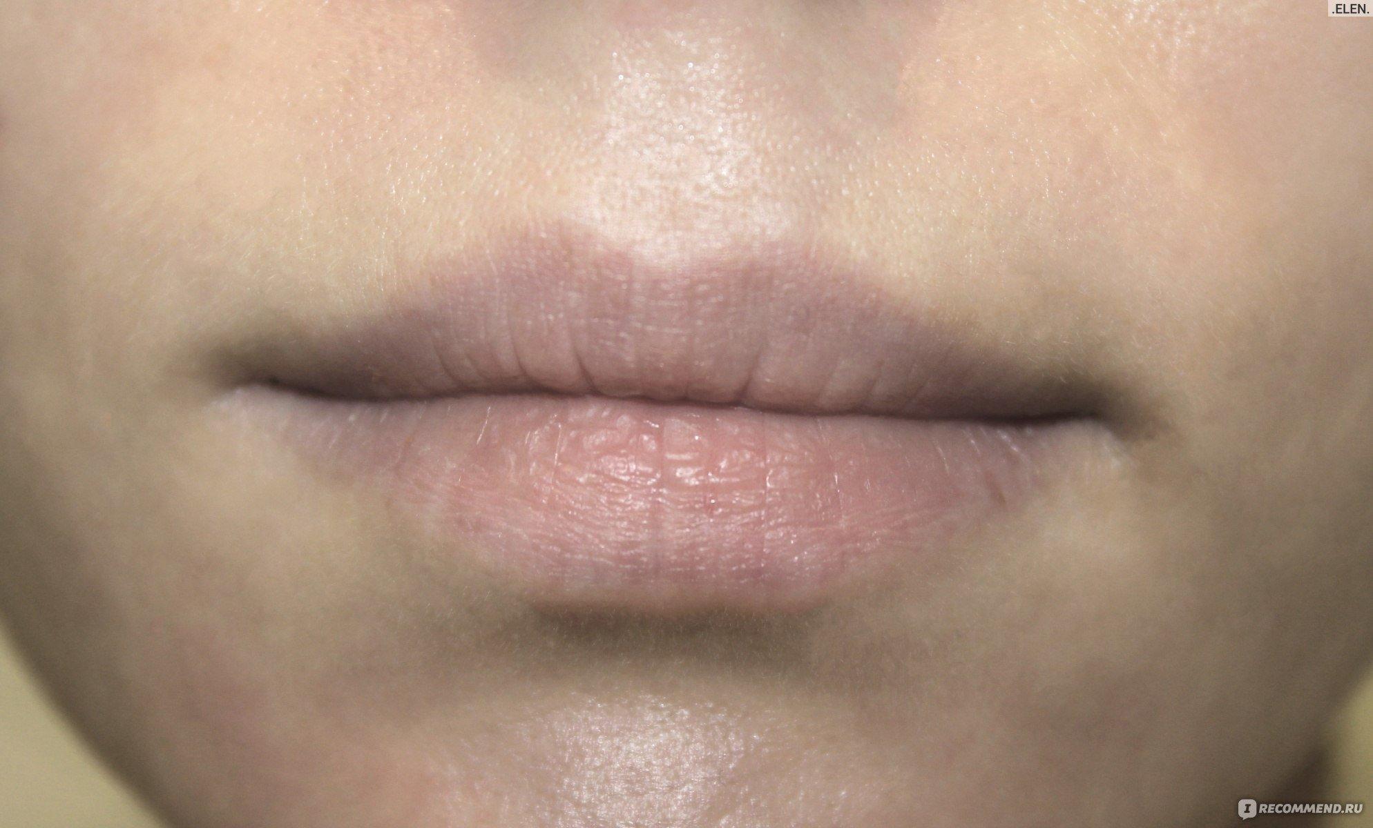 Почему губы трескаются и как от этого избавиться