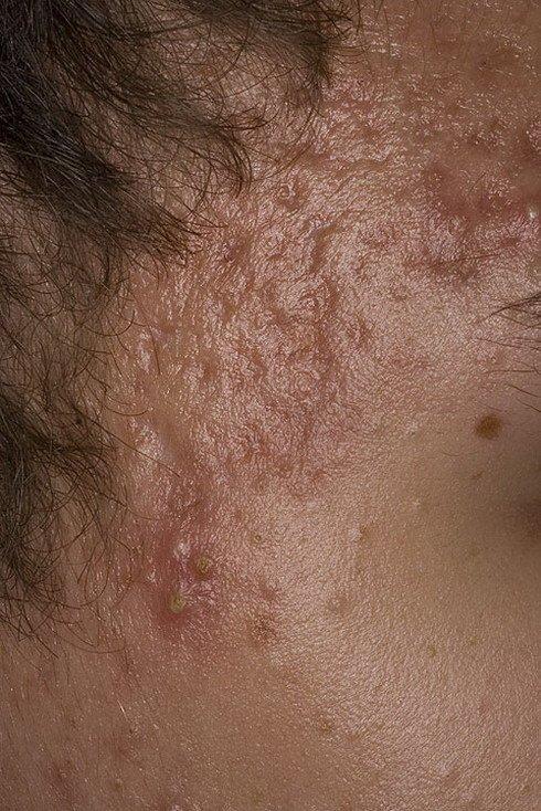 akne ugri scar 1 a foto