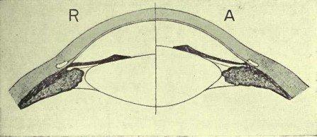 Рисунок 10. Схема Теории Аккомодации Гельмгольца. R – предполагаемое состояние покоя хрусталика, при котором он настроен на зрение вдаль. На А поддерживающая мышца, как предполагается, расслабляется через сокращение цилиарной мышцы, позволяя хрусталику выпячиваться вперёд ввиду его эластичности.