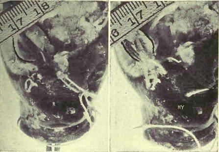 Рисунок 10. Демонстрация, на примере глаза карпа, того, что прямые мышцы укорачивают зрительную ось при гиперметропии. R, состояние покоя. Глазное яблоко имеет нормальную длину и находится в состоянии эмметропии. Ну, гиперметропия. Натяжение внешней и внутренней прямой мышц было усилено путём перемещения и ретиноскоп показывает, что возникла гиперметропия. Ещё легче заметить, что глазное яблоко стало короче. Линейка показывает, что фокус камеры не был существенно изменён между этими двумя фотографиями.