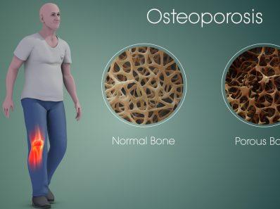 Естественное лечение остеопороза