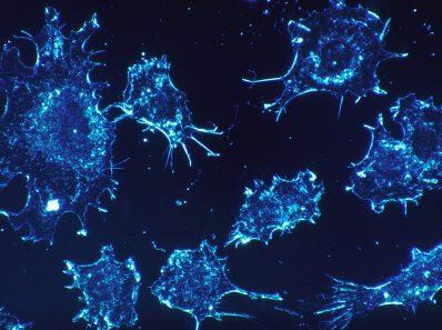 (Истинные) основы лечения рака