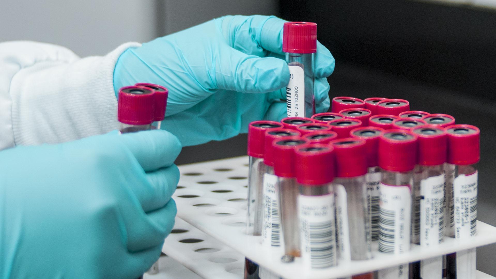 Исследователи предупреждают, что некоторые вакцины против COVID-19 могут увеличить риск заражения ВИЧ