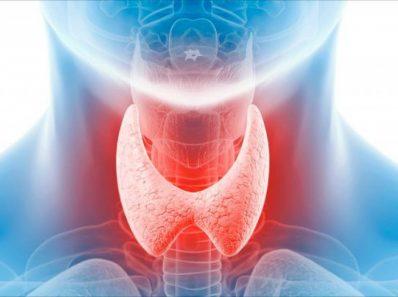 Что Нужно Знать О Здоровье Щитовидной Железы
