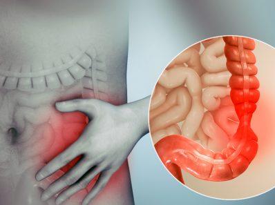 Важность микробного разнообразия в здоровье и болезнях кишечника