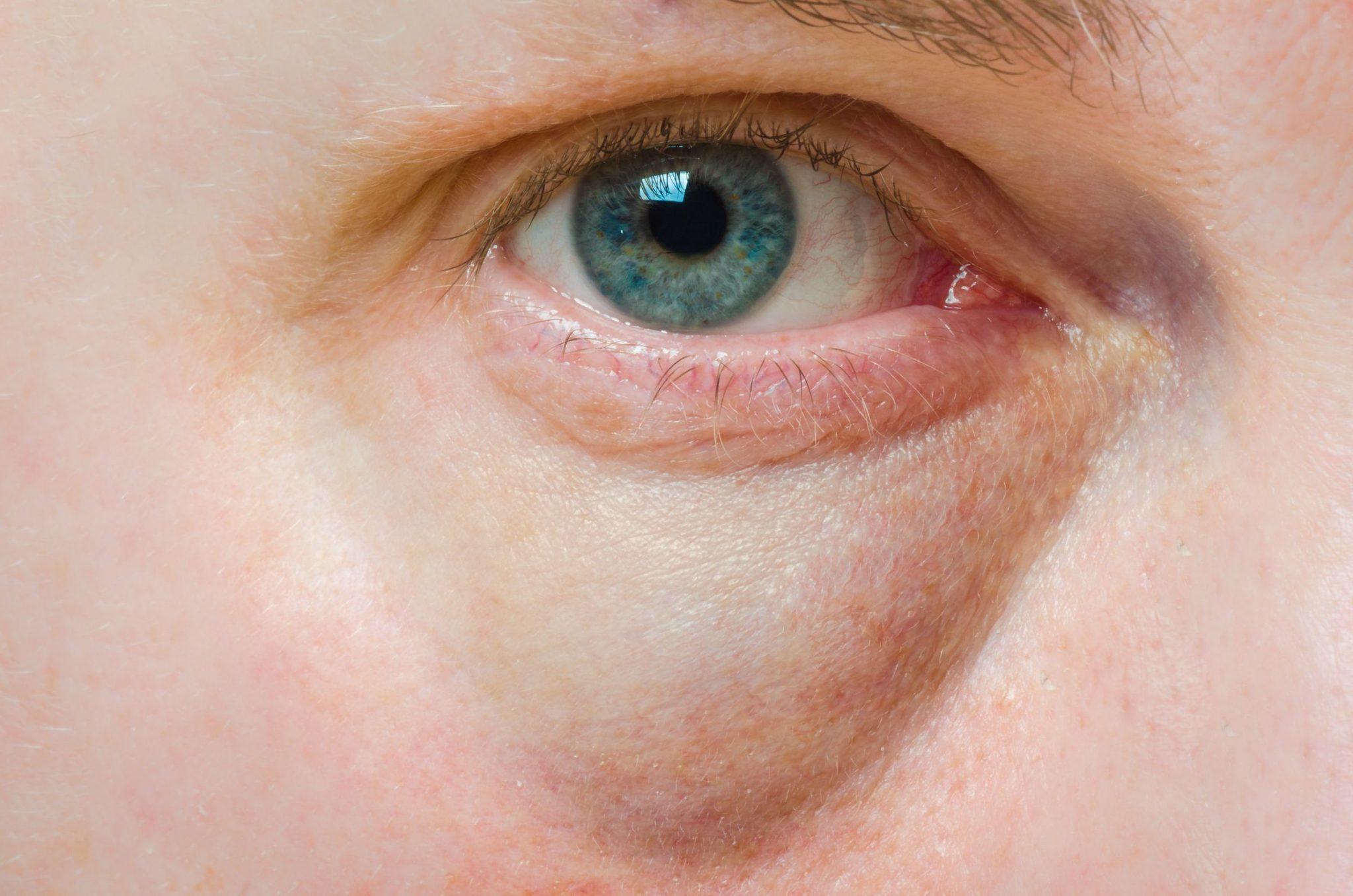 FDA предупреждает о ложноположительных тестах на антиген COVID-19