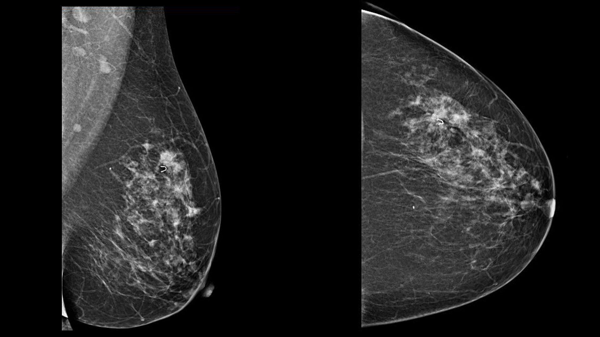 Раннее обследование состояния здоровья нецелесообразно для женщин в возрасте 40 лет