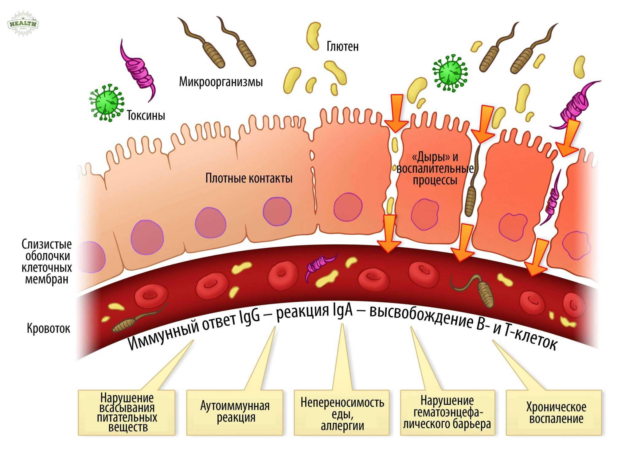 Синдром дырявого кишечника и злаки - есть ли связь?