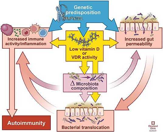 Vitamin D Deficiency May Contribute To Autoimmune Disease